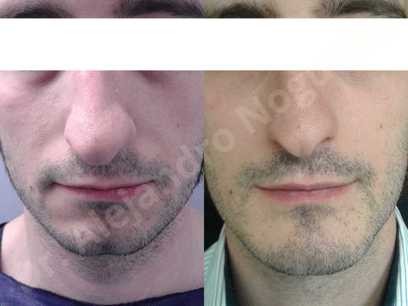 Small chin,Weak chin,Elbow bone graft harvesting,Oblique chin osteotomy,Osseous chin advancement,Two dimensional genioplasty,Vertical osseous chin grafting - photo 26