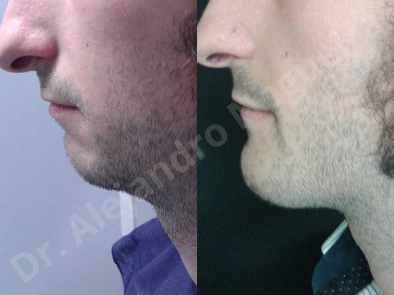 Small chin,Weak chin,Elbow bone graft harvesting,Oblique chin osteotomy,Osseous chin advancement,Two dimensional genioplasty,Vertical osseous chin grafting - photo 27