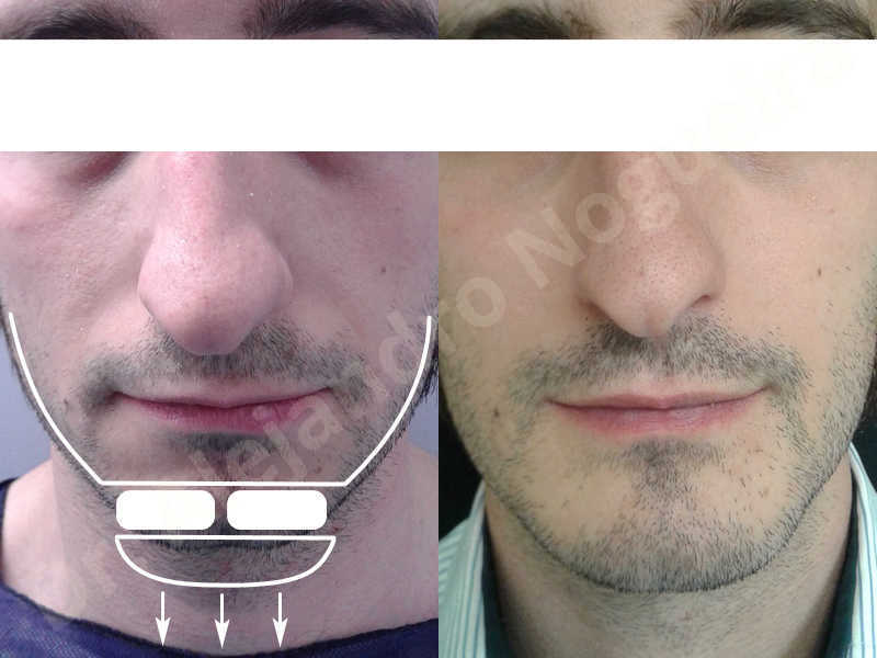 Small chin,Weak chin,Elbow bone graft harvesting,Oblique chin osteotomy,Osseous chin advancement,Two dimensional genioplasty,Vertical osseous chin grafting - photo 28