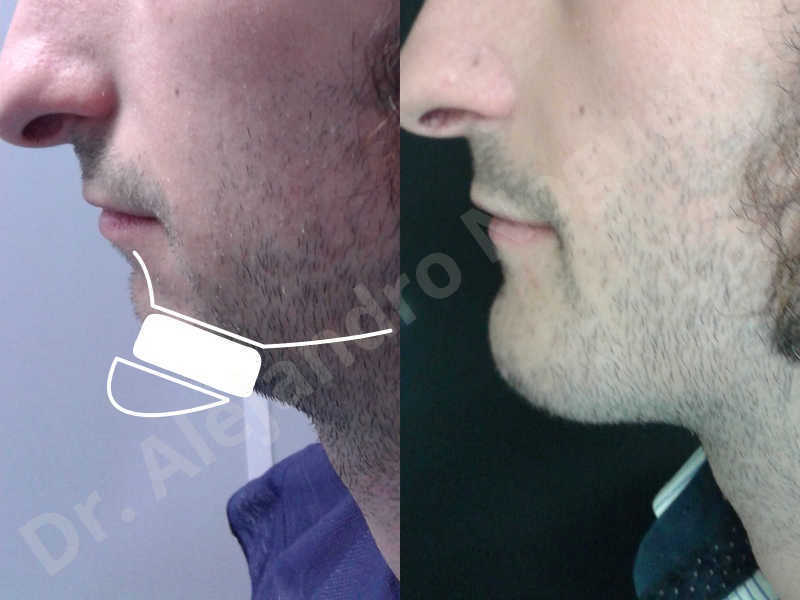 Small chin,Weak chin,Elbow bone graft harvesting,Oblique chin osteotomy,Osseous chin advancement,Two dimensional genioplasty,Vertical osseous chin grafting - photo 29