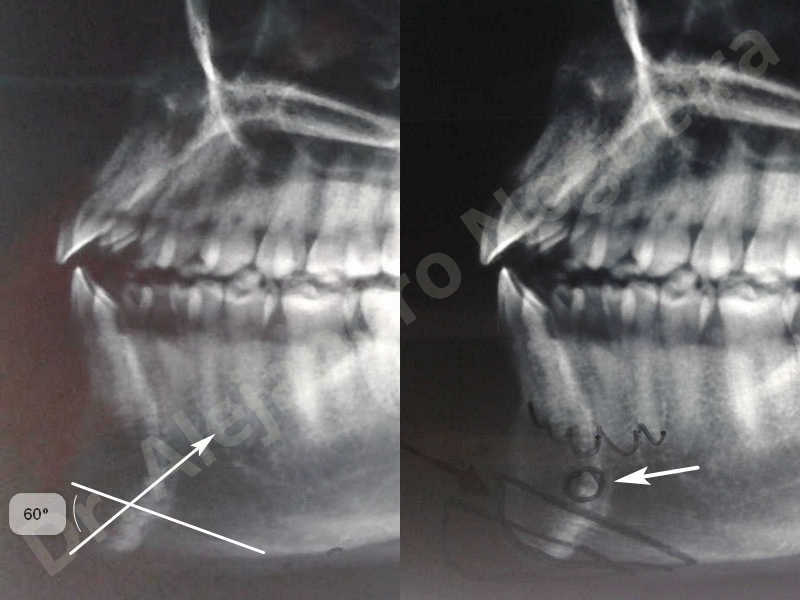 Small chin,Weak chin,Elbow bone graft harvesting,Oblique chin osteotomy,Osseous chin advancement,Two dimensional genioplasty,Vertical osseous chin grafting - photo 3