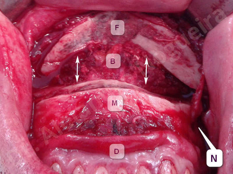 Small chin,Weak chin,Elbow bone graft harvesting,Oblique chin osteotomy,Osseous chin advancement,Two dimensional genioplasty,Vertical osseous chin grafting - photo 4