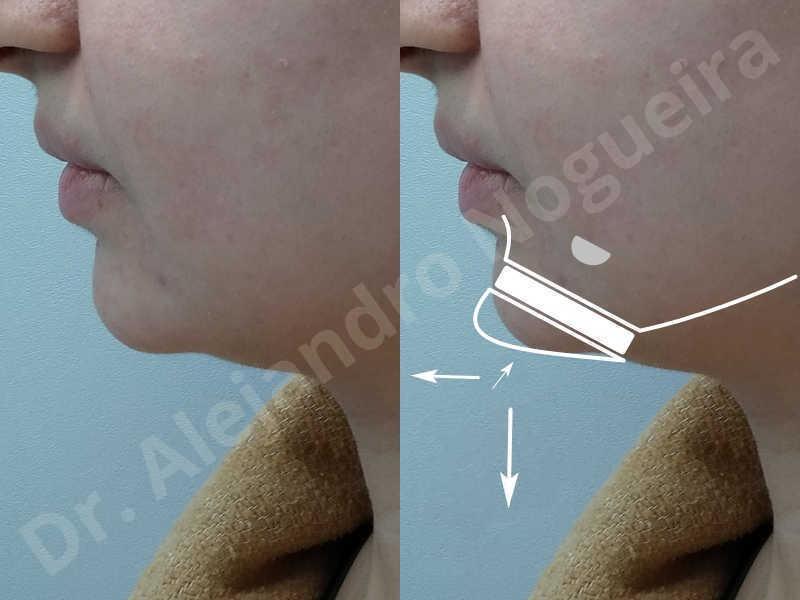 Small chin,Weak chin,Hip bone graft harvesting,Horizontal osseous chin grafting,Oblique chin osteotomy,Three dimensional genioplasty,Vertical osseous chin grafting - photo 2