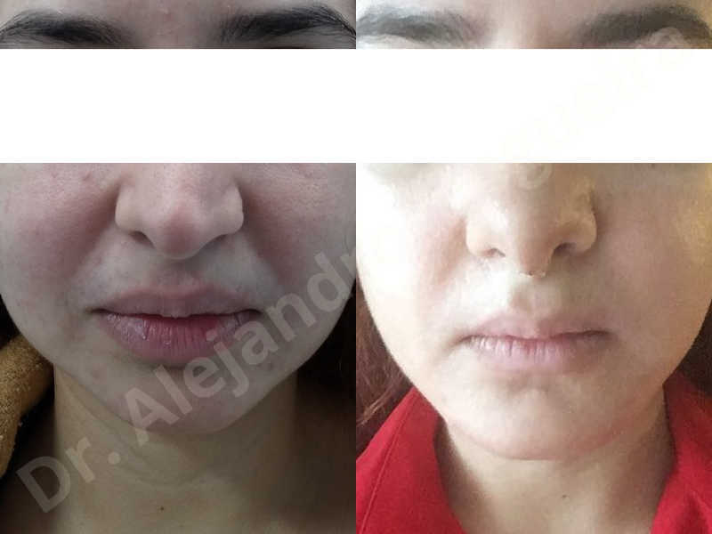 Small chin,Weak chin,Hip bone graft harvesting,Horizontal osseous chin grafting,Oblique chin osteotomy,Three dimensional genioplasty,Vertical osseous chin grafting - photo 33