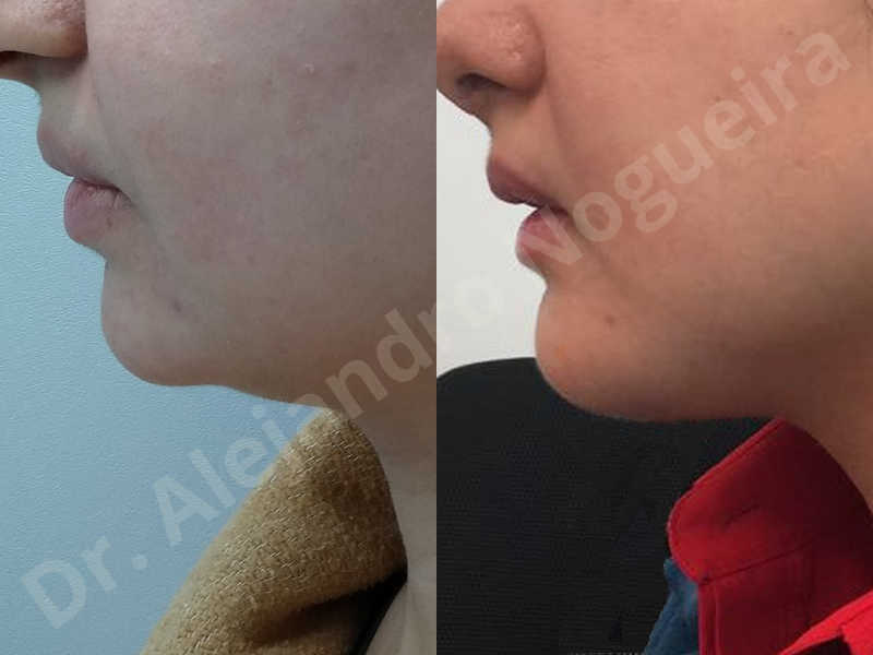 Small chin,Weak chin,Hip bone graft harvesting,Horizontal osseous chin grafting,Oblique chin osteotomy,Three dimensional genioplasty,Vertical osseous chin grafting - photo 34
