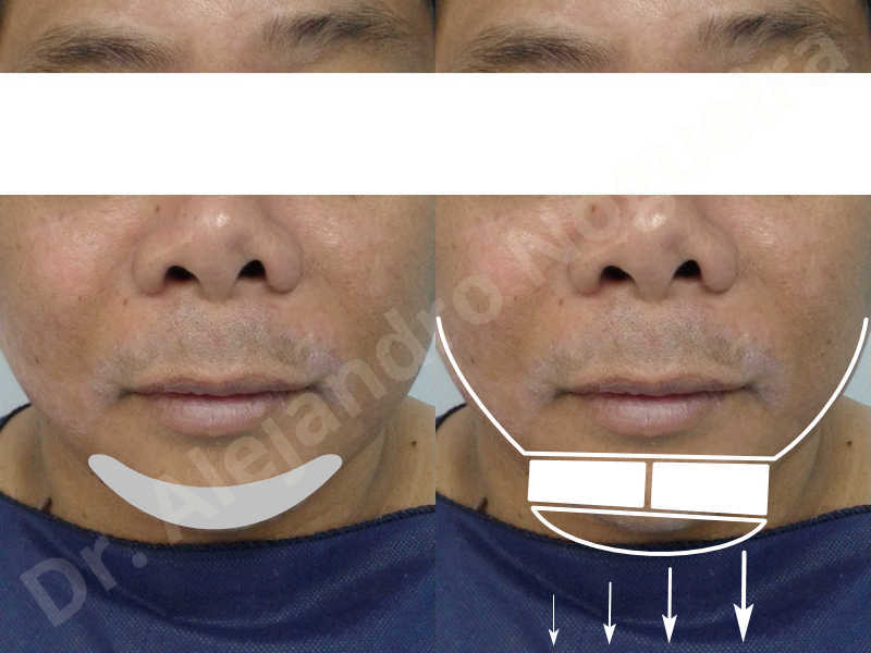 Hypertrophic scars,Small chin,Weak chin,Hip bone graft harvesting,Oblique chin osteotomy,Osseous chin advancement,Two dimensional genioplasty,Vertical osseous chin grafting - photo 1