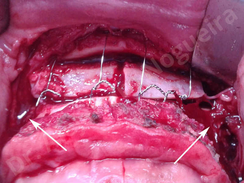 Hypertrophic scars,Small chin,Weak chin,Hip bone graft harvesting,Oblique chin osteotomy,Osseous chin advancement,Two dimensional genioplasty,Vertical osseous chin grafting - photo 19