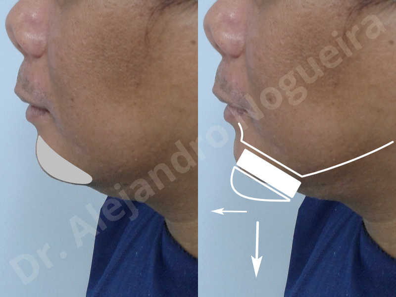 Hypertrophic scars,Small chin,Weak chin,Hip bone graft harvesting,Oblique chin osteotomy,Osseous chin advancement,Two dimensional genioplasty,Vertical osseous chin grafting - photo 2