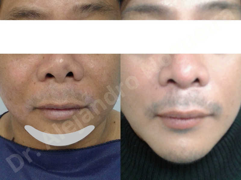 Hypertrophic scars,Small chin,Weak chin,Hip bone graft harvesting,Oblique chin osteotomy,Osseous chin advancement,Two dimensional genioplasty,Vertical osseous chin grafting - photo 23