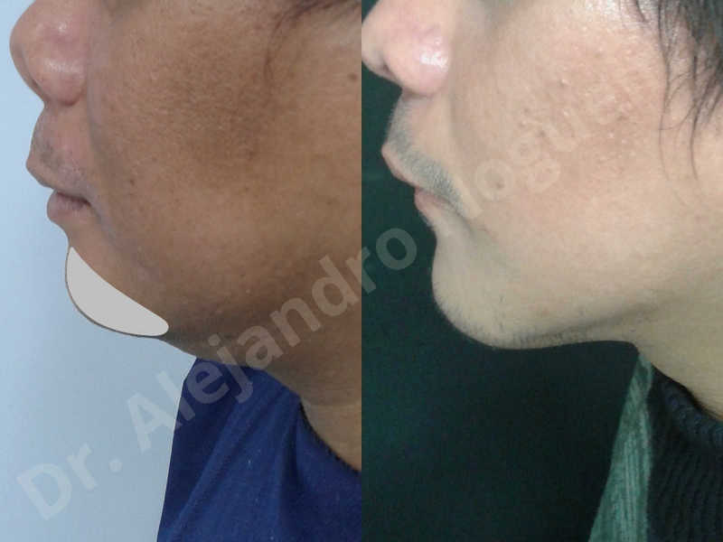 Hypertrophic scars,Small chin,Weak chin,Hip bone graft harvesting,Oblique chin osteotomy,Osseous chin advancement,Two dimensional genioplasty,Vertical osseous chin grafting - photo 24