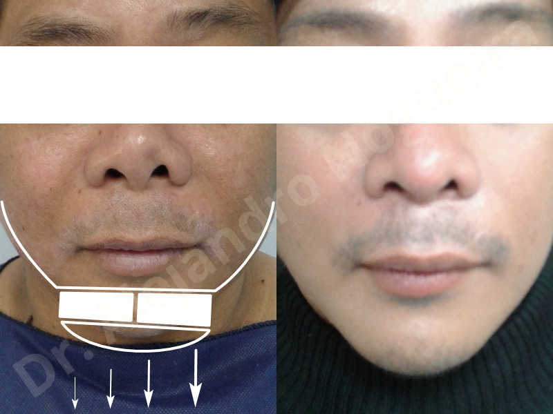 Hypertrophic scars,Small chin,Weak chin,Hip bone graft harvesting,Oblique chin osteotomy,Osseous chin advancement,Two dimensional genioplasty,Vertical osseous chin grafting - photo 25