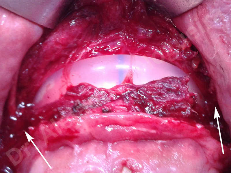 Hypertrophic scars,Small chin,Weak chin,Hip bone graft harvesting,Oblique chin osteotomy,Osseous chin advancement,Two dimensional genioplasty,Vertical osseous chin grafting - photo 5