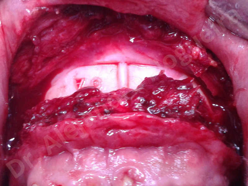 Hypertrophic scars,Small chin,Weak chin,Hip bone graft harvesting,Oblique chin osteotomy,Osseous chin advancement,Two dimensional genioplasty,Vertical osseous chin grafting - photo 7