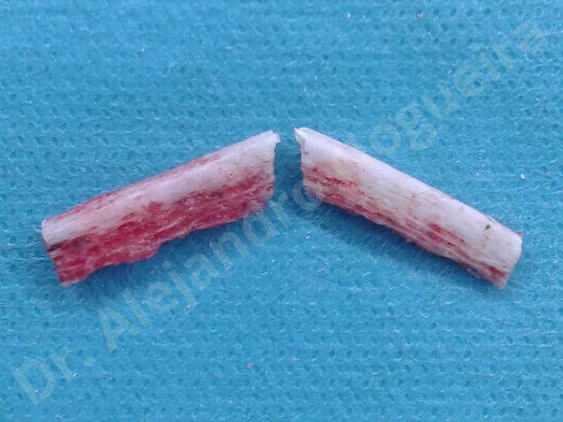 Small chin,Weak chin,Elbow bone graft harvesting,Oblique chin osteotomy,Osseous chin advancement,Two dimensional genioplasty,Vertical osseous chin grafting - photo 15