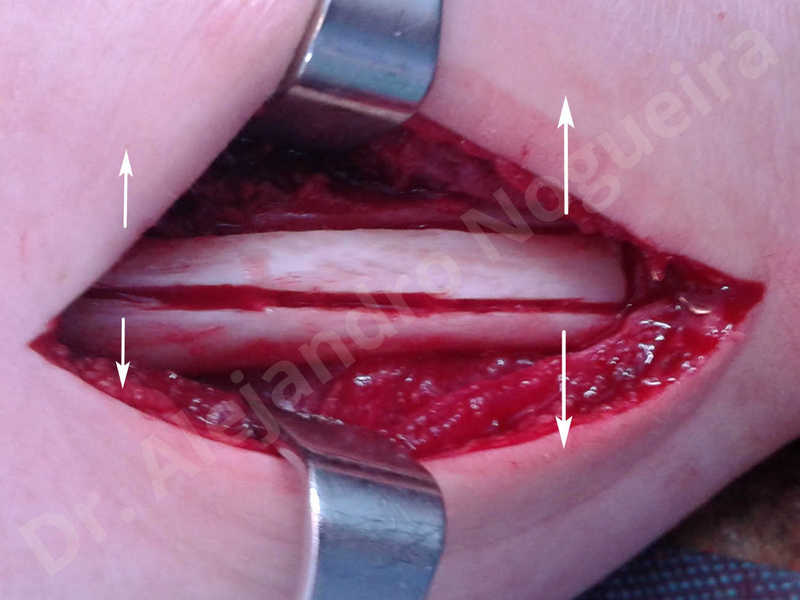 Small chin,Weak chin,Elbow bone graft harvesting,Oblique chin osteotomy,Osseous chin advancement,Two dimensional genioplasty,Vertical osseous chin grafting - photo 6