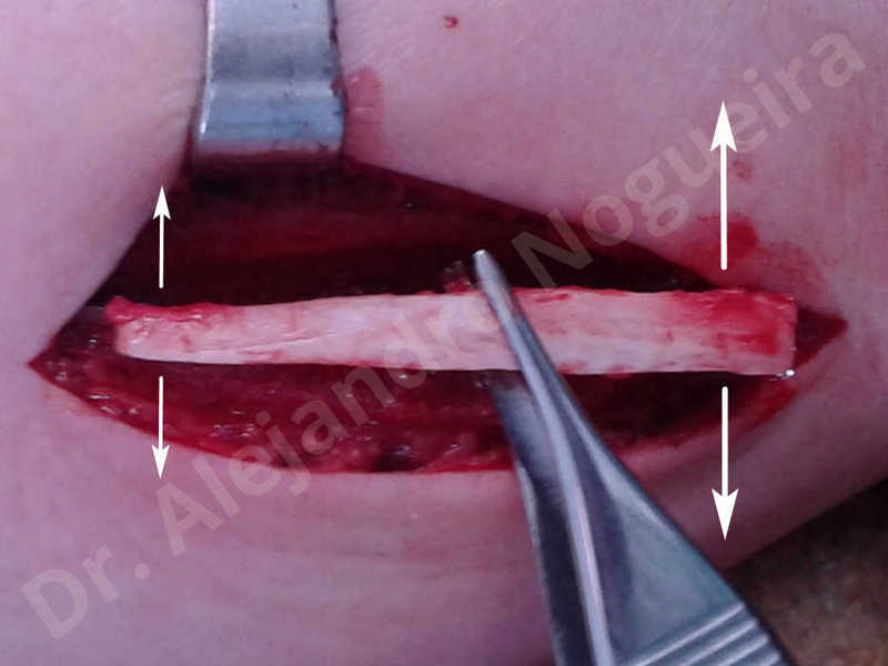 Small chin,Weak chin,Elbow bone graft harvesting,Oblique chin osteotomy,Osseous chin advancement,Two dimensional genioplasty,Vertical osseous chin grafting - photo 9