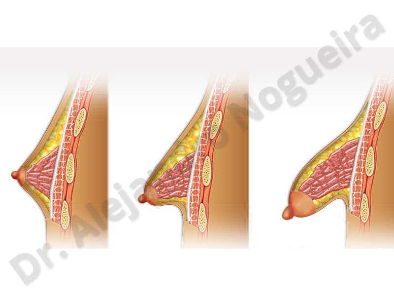 Large areolas,Tuberous breasts,Areola reduction,Tuberous mammoplasty - photo 2
