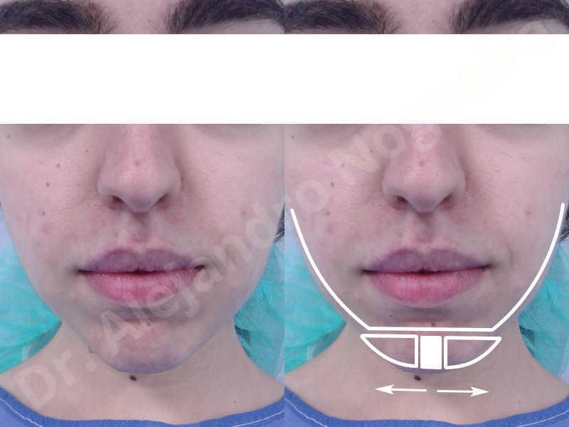 Small chin,Weak chin,Elbow bone graft harvesting,Horizontal chin osteotomy,Horizontal osseous chin grafting,Osseous chin advancement,Two dimensional genioplasty - photo 1