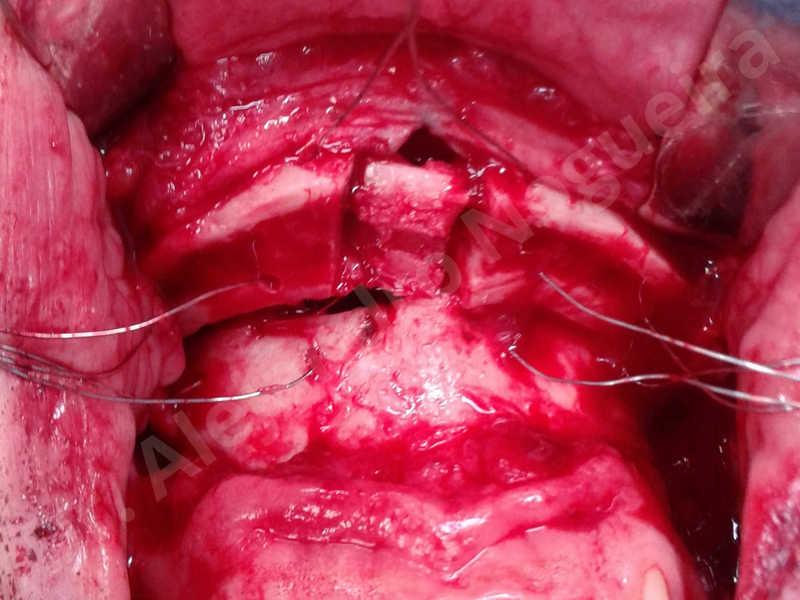 Small chin,Weak chin,Elbow bone graft harvesting,Horizontal chin osteotomy,Horizontal osseous chin grafting,Osseous chin advancement,Two dimensional genioplasty - photo 16