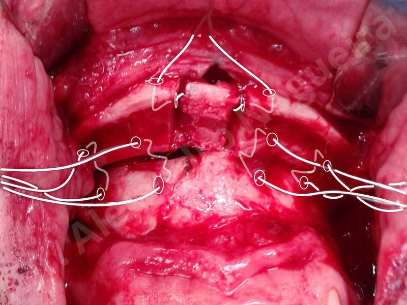 Small chin,Weak chin,Elbow bone graft harvesting,Horizontal chin osteotomy,Horizontal osseous chin grafting,Osseous chin advancement,Two dimensional genioplasty - photo 17