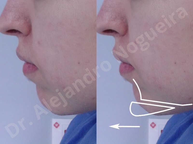 Small chin,Weak chin,Elbow bone graft harvesting,Horizontal chin osteotomy,Horizontal osseous chin grafting,Osseous chin advancement,Two dimensional genioplasty - photo 2