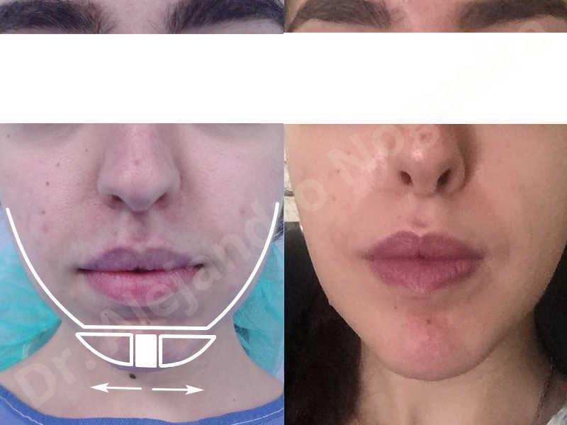 Small chin,Weak chin,Elbow bone graft harvesting,Horizontal chin osteotomy,Horizontal osseous chin grafting,Osseous chin advancement,Two dimensional genioplasty - photo 26
