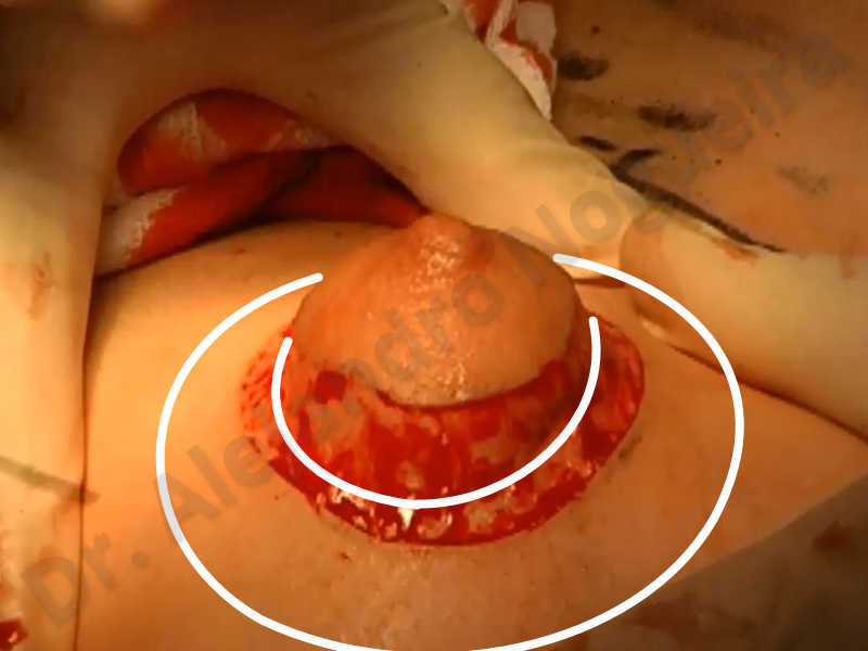 Asymmetric breasts,Empty breasts,Large areolas,Small breasts,Too far apart wide cleavage breasts,Tuberous breasts,Anatomical shape,Areola reduction,Subfascial pocket plane,Tuberous mammoplasty,Circumareolar incision,Lower hemi periareolar incision - photo 114