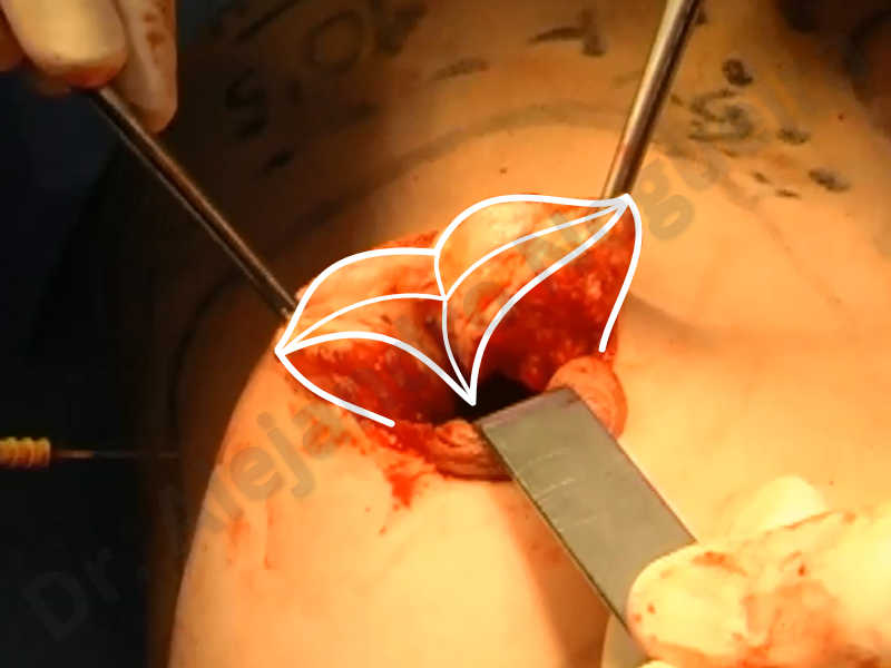 Asymmetric breasts,Empty breasts,Large areolas,Small breasts,Too far apart wide cleavage breasts,Tuberous breasts,Anatomical shape,Areola reduction,Subfascial pocket plane,Tuberous mammoplasty,Circumareolar incision,Lower hemi periareolar incision - photo 137