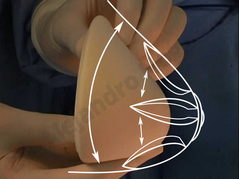 Asymmetric breasts,Empty breasts,Large areolas,Small breasts,Too far apart wide cleavage breasts,Tuberous breasts,Anatomical shape,Areola reduction,Subfascial pocket plane,Tuberous mammoplasty,Circumareolar incision,Lower hemi periareolar incision - photo 155