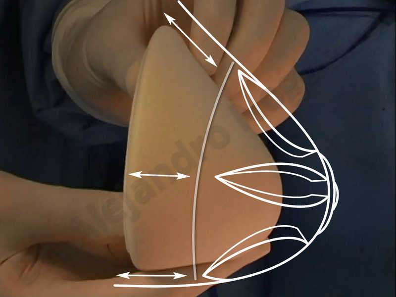 Asymmetric breasts,Empty breasts,Large areolas,Small breasts,Too far apart wide cleavage breasts,Tuberous breasts,Anatomical shape,Areola reduction,Subfascial pocket plane,Tuberous mammoplasty,Circumareolar incision,Lower hemi periareolar incision - photo 156