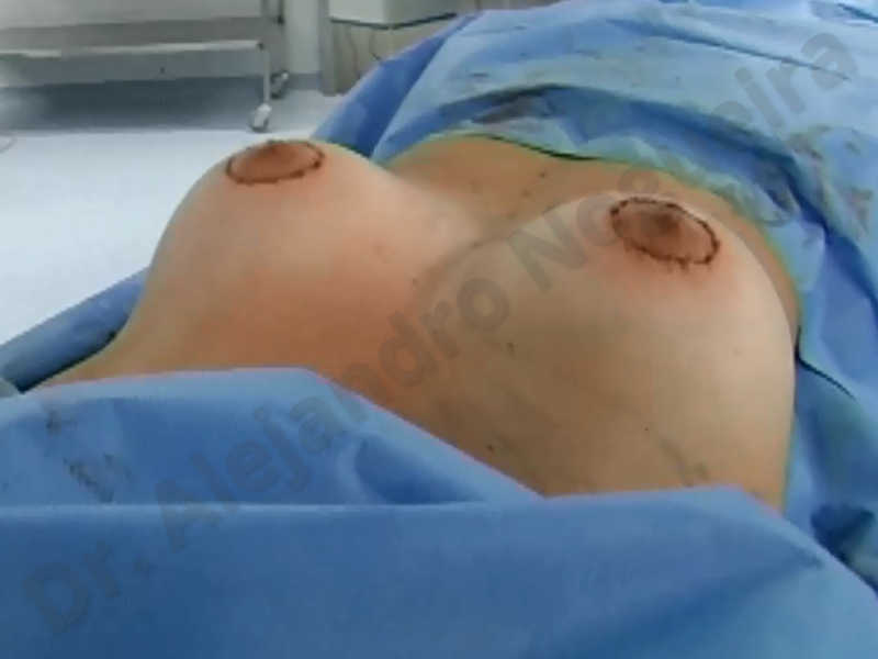 Asymmetric breasts,Empty breasts,Large areolas,Small breasts,Too far apart wide cleavage breasts,Tuberous breasts,Anatomical shape,Areola reduction,Subfascial pocket plane,Tuberous mammoplasty,Circumareolar incision,Lower hemi periareolar incision - photo 166