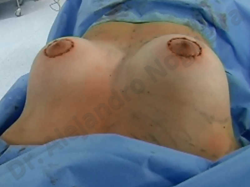 Asymmetric breasts,Empty breasts,Large areolas,Small breasts,Too far apart wide cleavage breasts,Tuberous breasts,Anatomical shape,Areola reduction,Subfascial pocket plane,Tuberous mammoplasty,Circumareolar incision,Lower hemi periareolar incision - photo 167
