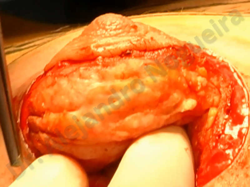 Asymmetric breasts,Empty breasts,Large areolas,Small breasts,Too far apart wide cleavage breasts,Tuberous breasts,Anatomical shape,Areola reduction,Subfascial pocket plane,Tuberous mammoplasty,Circumareolar incision,Lower hemi periareolar incision - photo 23