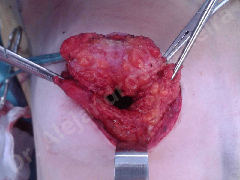 Asymmetric breasts,Cross eyed breasts,Empty breasts,Large areolas,Lateral breasts,Moderately saggy droopy breasts,Small breasts,Too far apart wide cleavage breasts,Tuberous breasts,Anatomical shape,Areola reduction,Circumareolar incision,Subfascial pocket plane,Tuberous mammoplasty - photo 18