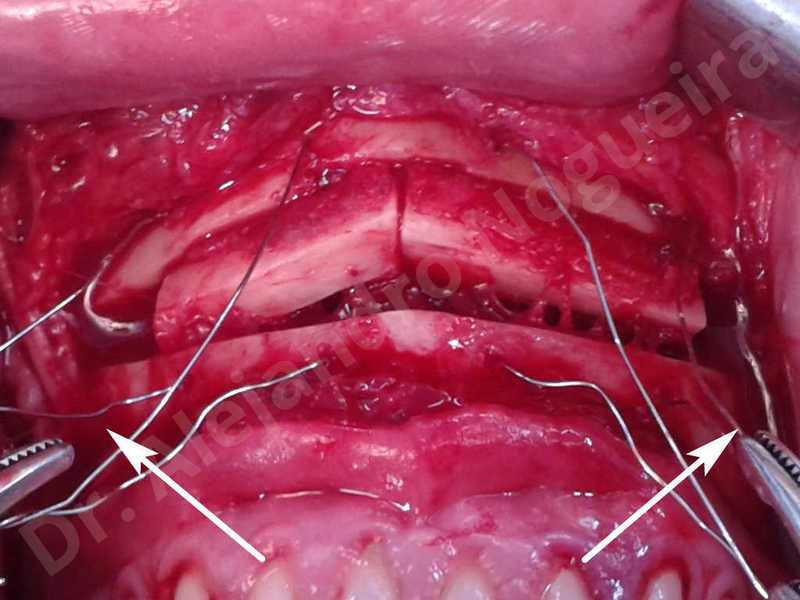 Small chin,Weak chin,Elbow bone graft harvesting,Oblique chin osteotomy,Osseous chin advancement,Two dimensional genioplasty,Vertical osseous chin grafting - photo 16