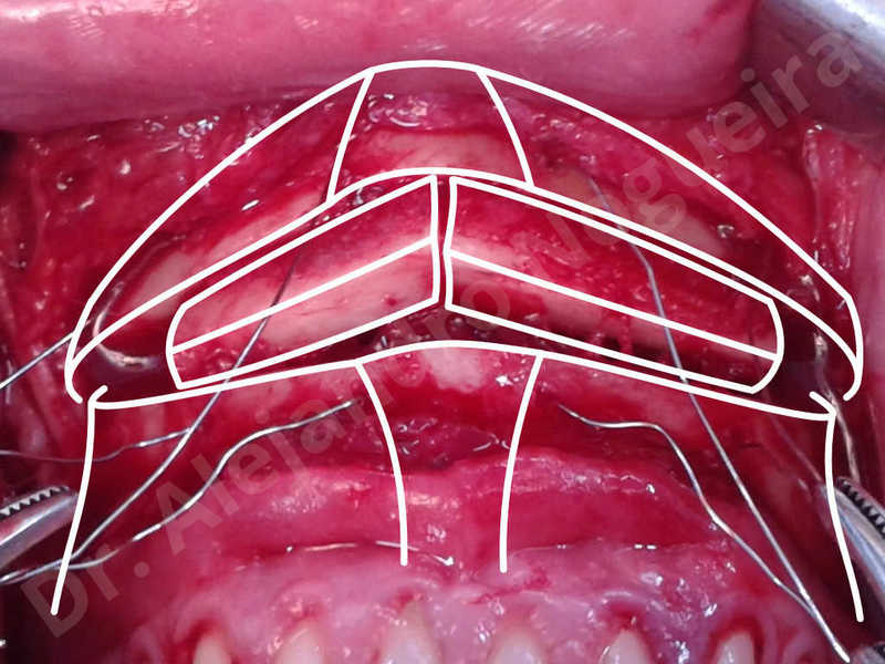 Small chin,Weak chin,Elbow bone graft harvesting,Oblique chin osteotomy,Osseous chin advancement,Two dimensional genioplasty,Vertical osseous chin grafting - photo 17