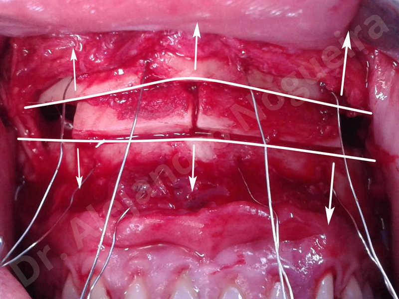 Small chin,Weak chin,Elbow bone graft harvesting,Oblique chin osteotomy,Osseous chin advancement,Two dimensional genioplasty,Vertical osseous chin grafting - photo 20