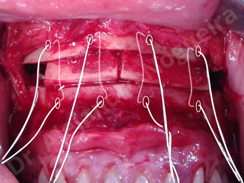 Small chin,Weak chin,Elbow bone graft harvesting,Oblique chin osteotomy,Osseous chin advancement,Two dimensional genioplasty,Vertical osseous chin grafting - photo 21