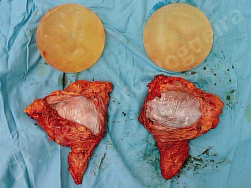 Asymmetric breasts,Breast implants animation muscle flex deformity,Breast implants capsular contracture,Breast implants capsule calcification,Breast implants displacement malposition,Breast implants riding too high,Breast implants visibility palpability,Cross eyed breasts implants,Mildly large breasts,Moderately saggy droopy breasts,Severely saggy droopy breasts,Slightly large breasts,Too far apart wide cleavage breasts,Waterfall effect breast implants,Wide breasts,Capsulectomy - photo 13