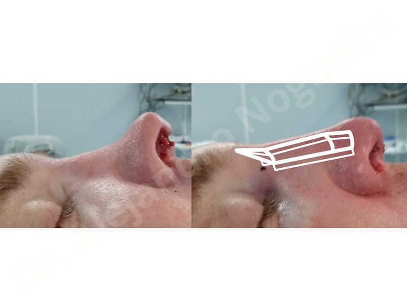 Alar rim retraction,Asymmetric tip,Bifid columella,Bifid tip,Broad dorsum,Bulbous tip,Dorsum ridges,Failed osteotomies,Flat dorsum,Inverted V deformity,Irregular dorsum,Low dorsum,Low radix,Nasal fibrosis,Nasal valve collapse,Open roof deformity,Overprojected tip,Pinched middle vault,Saddle nose deformity,Short upper lateral cartilages,Sunken supratip,Tip bossae,Alar contour rim graft,Columella strut graft,Dorsum regularization,Dorsum replacement graft,Extended columella strut graft,Intercrural columella plasty sutures,Interdomal tip plasty sutures,Lateral cruras batten graft,Lateral cruras caudal extension graft,Lateral cruras cephalic resection,Lateral cruras custom made graft,Lateral cruras shortening resection,Lateral cruras strut graft,Medial cruras shortening resection,Onlay dorsum graft,Onlay radix graft,Onlay supratip graft,Open approach incision,Rib cartilage graft harvesting,Spreader graft,Tip defatting,Transdomal tip plasty sutures,Triangular cartilages caudal extension graft - photo 31