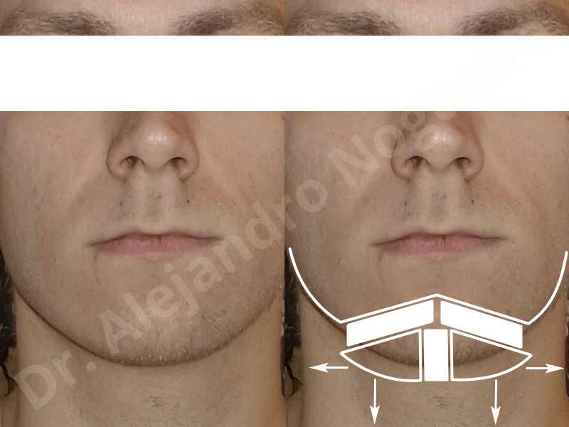 Small chin,Weak chin,Hip bone graft harvesting,Horizontal osseous chin grafting,Oblique chin osteotomy,Three dimensional genioplasty,Vertical osseous chin grafting - photo 1