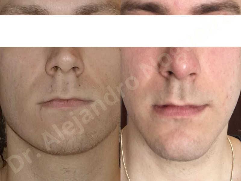 Small chin,Weak chin,Hip bone graft harvesting,Horizontal osseous chin grafting,Oblique chin osteotomy,Three dimensional genioplasty,Vertical osseous chin grafting - photo 13