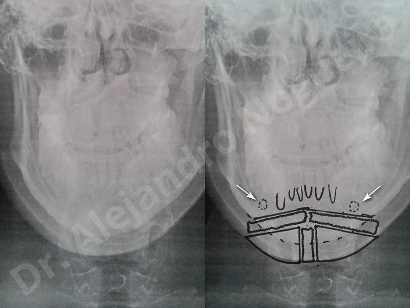 Small chin,Weak chin,Hip bone graft harvesting,Horizontal osseous chin grafting,Oblique chin osteotomy,Three dimensional genioplasty,Vertical osseous chin grafting - photo 3