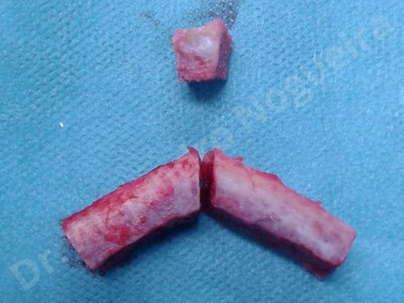 Small chin,Weak chin,Hip bone graft harvesting,Horizontal osseous chin grafting,Oblique chin osteotomy,Three dimensional genioplasty,Vertical osseous chin grafting - photo 6