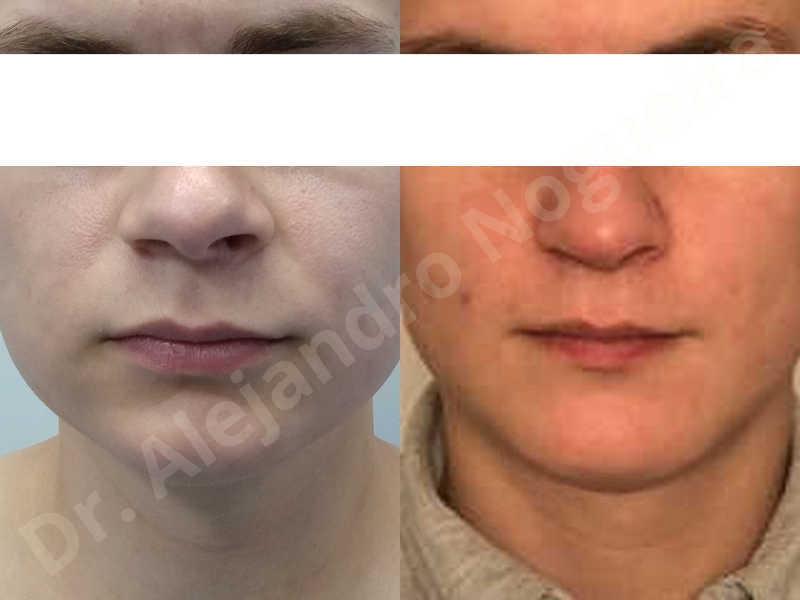 Small chin,Weak chin,Hip bone graft harvesting,Horizontal osseous chin grafting,Oblique chin osteotomy,Three dimensional genioplasty,Vertical osseous chin grafting - photo 39
