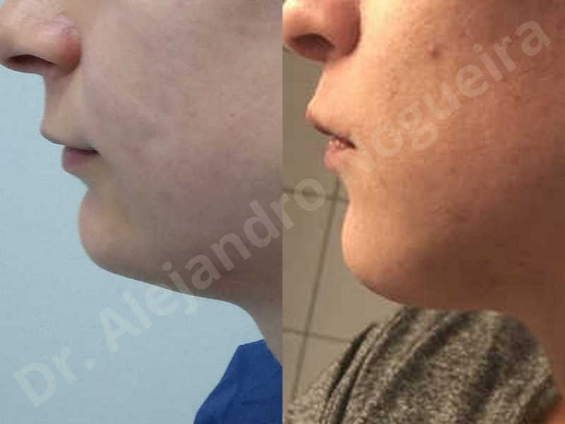 Small chin,Weak chin,Hip bone graft harvesting,Horizontal osseous chin grafting,Oblique chin osteotomy,Three dimensional genioplasty,Vertical osseous chin grafting - photo 40