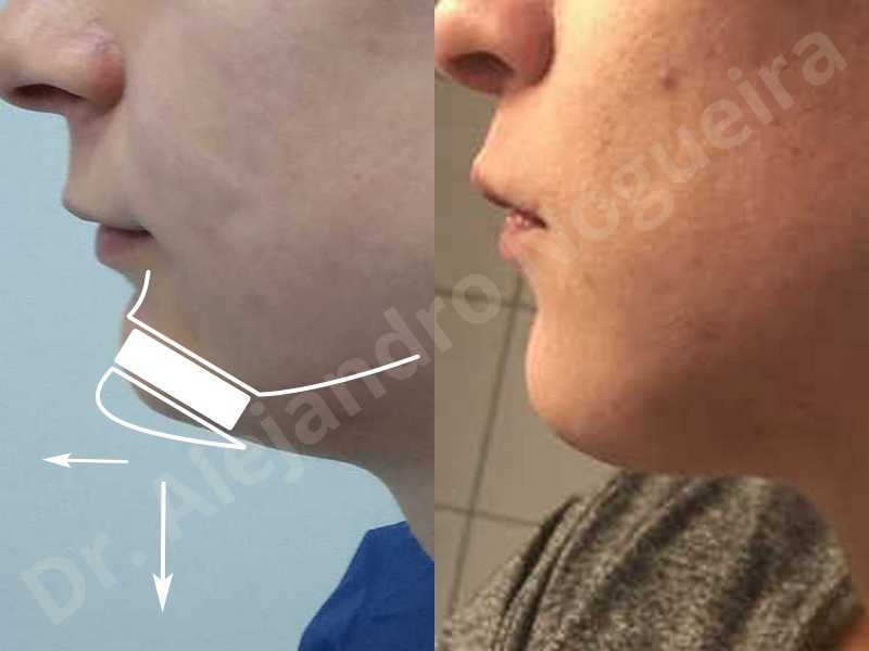 Small chin,Weak chin,Hip bone graft harvesting,Horizontal osseous chin grafting,Oblique chin osteotomy,Three dimensional genioplasty,Vertical osseous chin grafting - photo 42