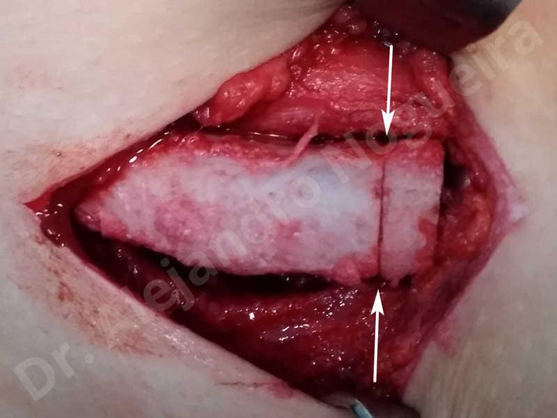 Small chin,Weak chin,Hip bone graft harvesting,Horizontal osseous chin grafting,Oblique chin osteotomy,Three dimensional genioplasty,Vertical osseous chin grafting - photo 7