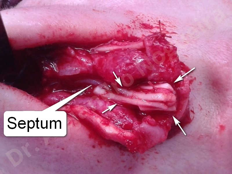 Broad nose,Bulbous tip,Crooked nose,Crooked tip,Droopy tip,Nasal fibrosis,Nasal valve collapse,Overrotated tip,Parenthesis tip deformity,Pinched middle vault,Pinched nose,Plunging tip deformity,Poorly defined tip,Poorly supported tip,Rounded tip,Short nose,Short septum,Short upper lateral cartilages,Small alar cartilages,Sunken columella,Tip bossae,Underprojected tip,Alar contour rim graft,Columella lengthening,Columella strut graft,Custom made tip graft,Ear cartilage graft harvesting,Extended columella strut graft,Intercrural columella plasty sutures,Interdomal tip plasty sutures,Lateral cruras custom made graft,Lateral cruras replacement graft,Lateral cruras repositioning,Open approach incision,Septocolumella graft,Septum caudal extension graft,Septum replacement graft,Shield tip graft,Spreader graft,Tip defatting,Tip replacement graft,Tongue in groove columella setback - photo 24