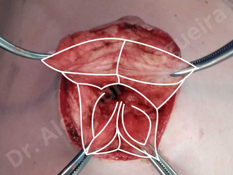 Asymmetric breasts,Empty breasts,Large areolas,Lateral breasts,Skinny breasts,Small breasts,Too far apart wide cleavage breasts,Tuberous breasts,Anatomical shape,Areola reduction,Circumareolar incision,Subfascial pocket plane,Tuberous mammoplasty - photo 6